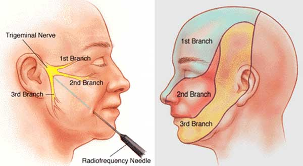 Trigeminal Neuralgia Treatment In Ahmedabad Best Treatment For